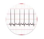 hartfilmpje of ecg met normaal hartritme